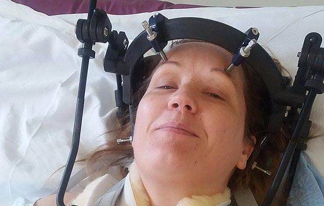 Karen McCord in her halo after breaknig her neck in fall