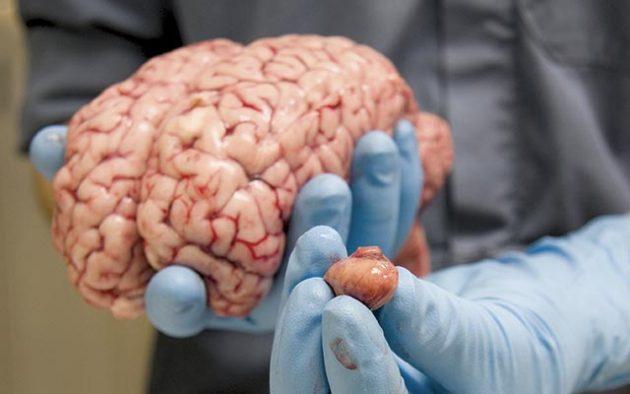 The Amazing Equine Brain Hh Vip Horse Hound