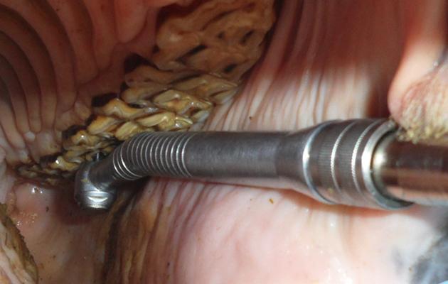 Flipboard: Why 5 million Americans get their wisdom teeth ...