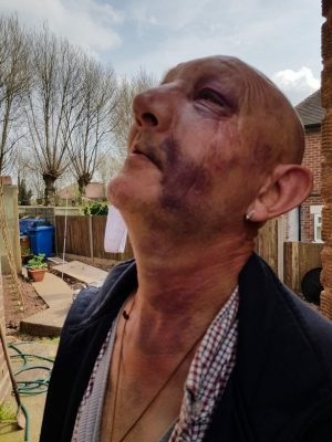 Robert Stevenson was beaten up on the Coventry Canal.