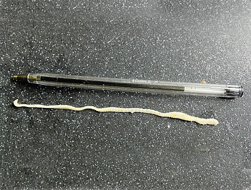 What is this?! Is it a tapeworm? - Shooting UK