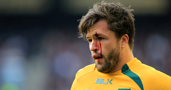Will Australia be hurt again?: Adam Ashley-Cooper suffers during the England game. The Wallabies could fall again